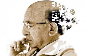 """วิจัยประเมิน """"ภาวะสมองเสื่อม"""" ความหวังใหม่ของผู้ป่วย เพื่อการป้องกัน – รักษาอัลไซเมอร์ที่แม่นยำ"""