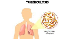 ประกาศรับข้อเสนอโครงการวิจัยเพื่อยุติวัณโรคในประเทศไทย