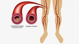 """วิจัยแนวทาง """"ดูแลผู้ป่วย หลอดเลือดตีบส่วนปลาย:  ลดตาย-ตัดขา  ในผู้ป่วยเบาหวาน"""""""