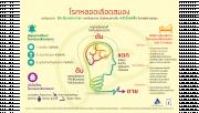 รูปอินโฟกราฟฟิคเกี่ยวกับโรคหลอดเลือดสมอง